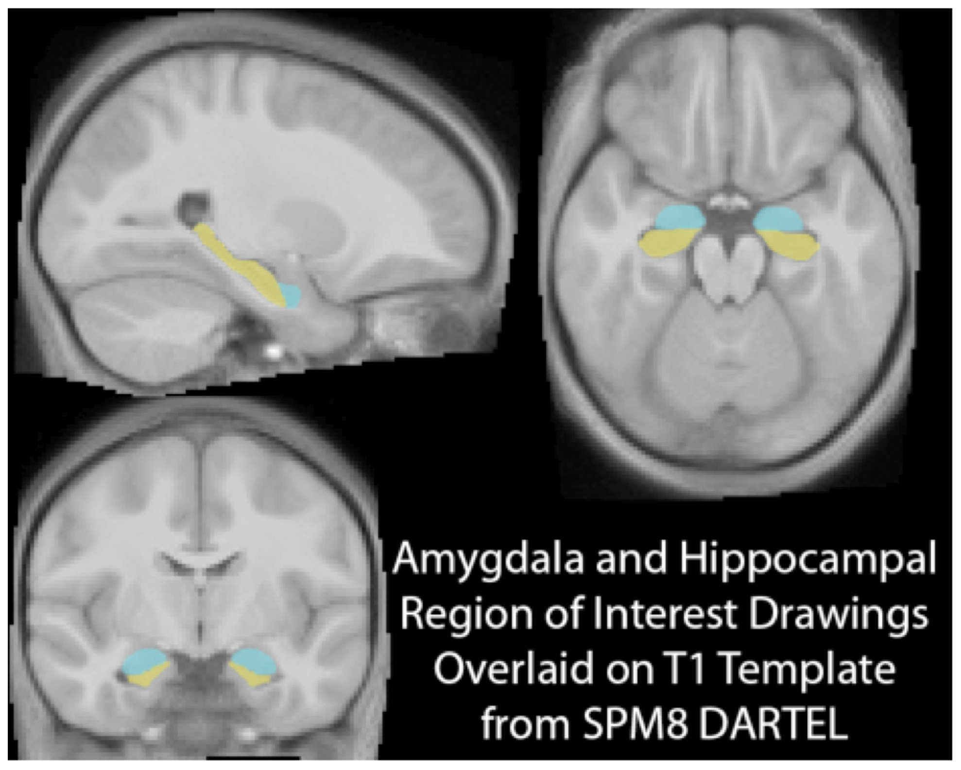 This Is Your Brain On Poverty With >> This Is Your Brain On Poverty Inequalities
